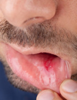 Summary of mouth ulcer